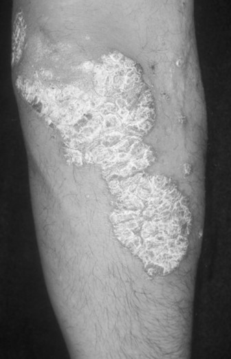 Before Psoriasis Treatment