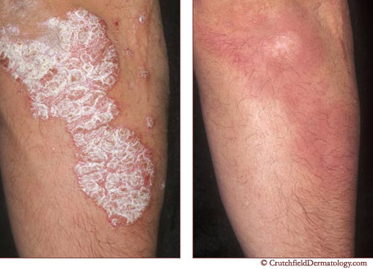 Psoriasis before & after