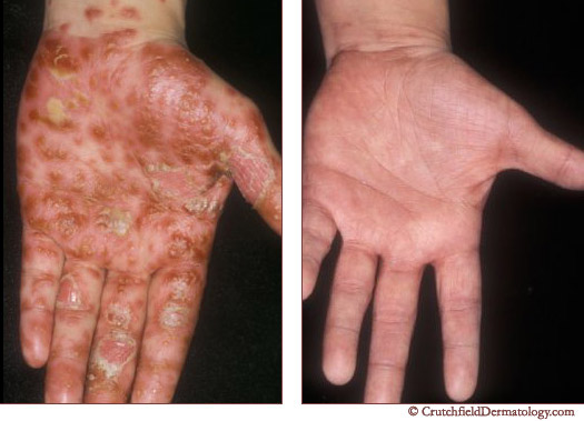 hand psoriasis treatment