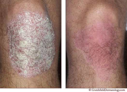 Mending the  Heartbreak of Psoriasis | By Charles E. Crutchfield III, M.D.