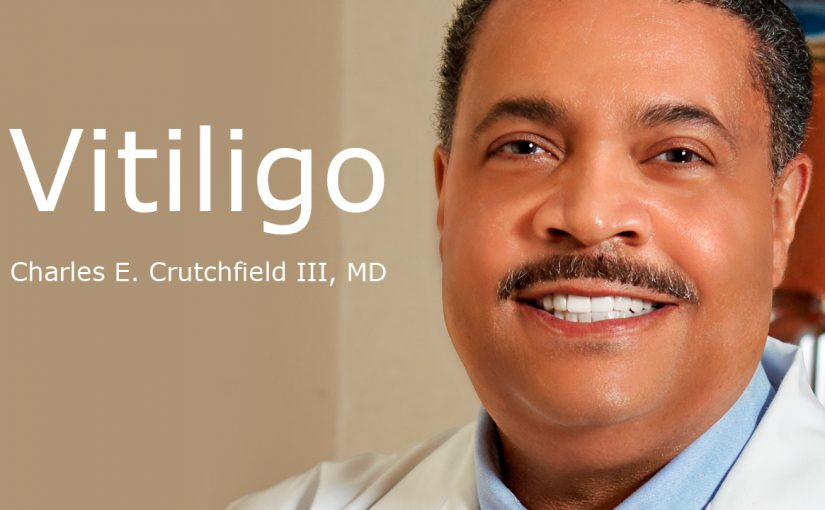 Vitiligo – What is It?