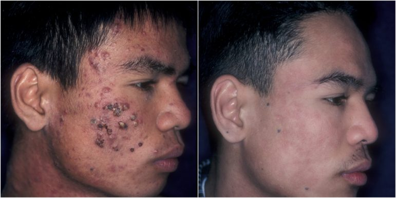 Teen boy acne before and after