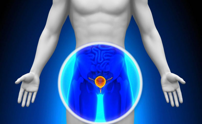 Prostate cancer health
