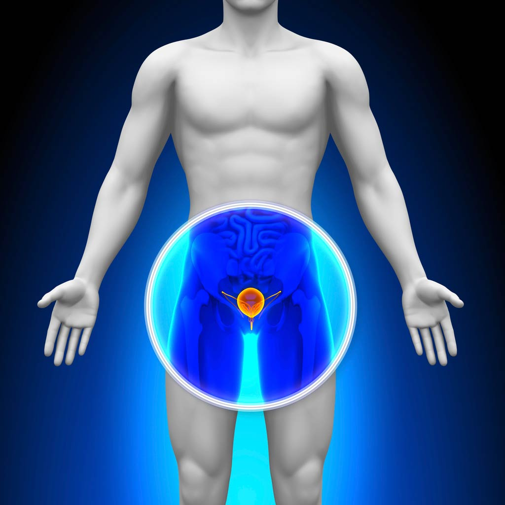 Prostate cancer health