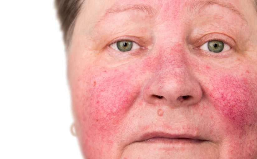 Rosacea — an equal-opportunity skin disease