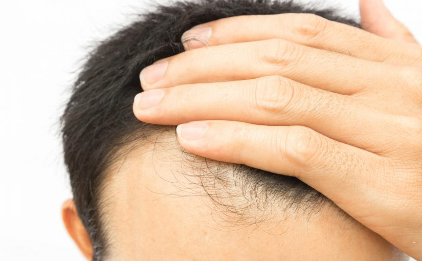 mens thinning hair