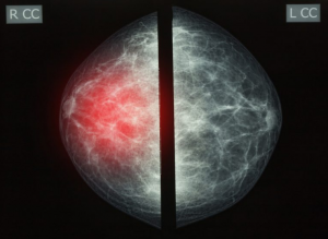 breastcancer screening