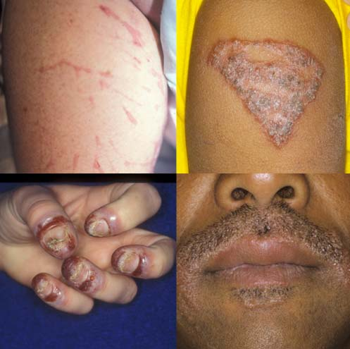 What is an allergic skin reaction?