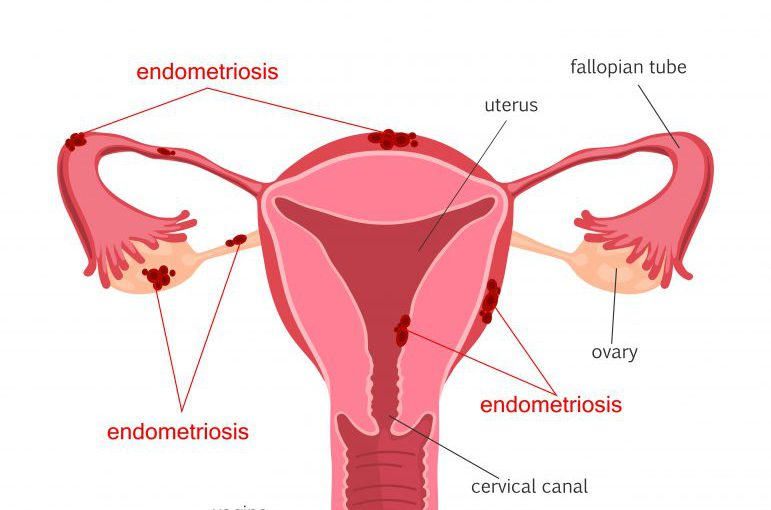 Endometriosis: A painful yet treatable condition for women