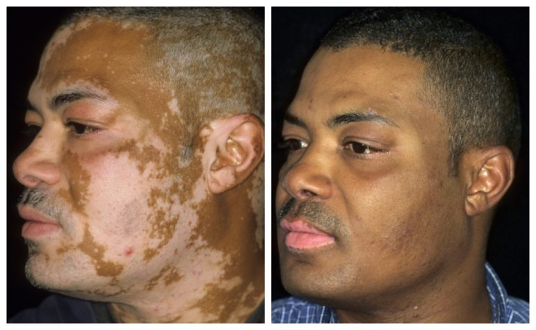 Treating skin of color