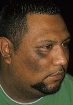 Dark spot on inside of cheek - Doctor answers on HealthTap