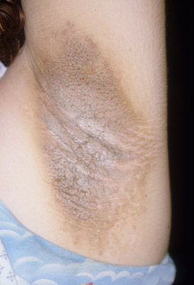 Crutchfield Dermatology : Continuing Medical Education Section