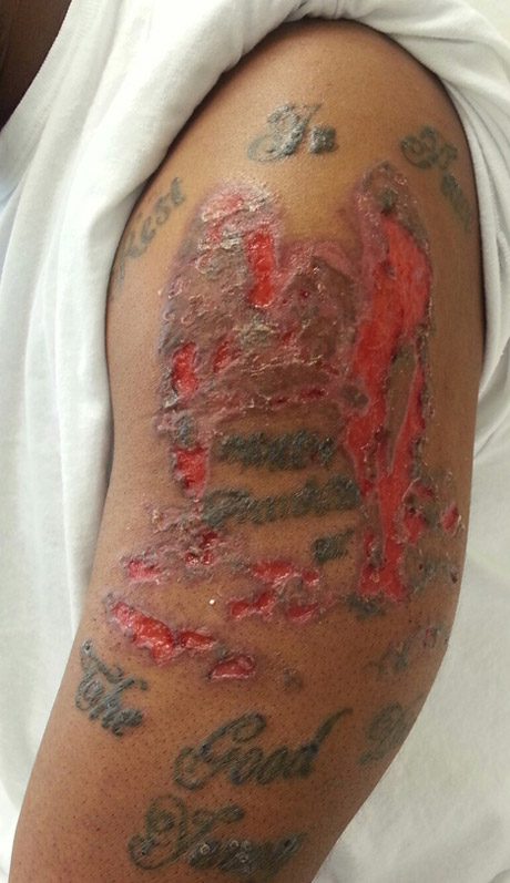 Crutchfield dermatology april 2014 case of the month for Allergic reaction to tattoo ink treatment