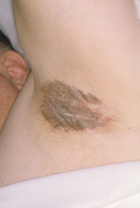Communication on this topic: How to Get Rid of Shaving Rash, how-to-get-rid-of-shaving-rash/