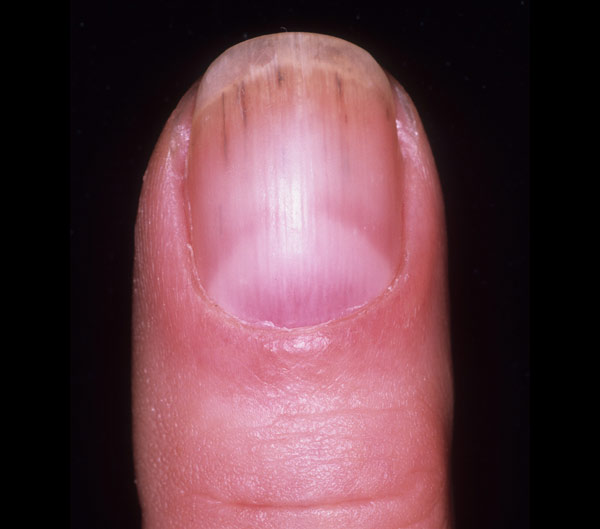 Nail Splinter Diagnosis Hemorrhages