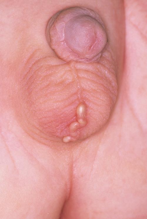 Child Scrotum Skin Care Issue