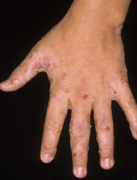 how to get rid of poison ivy between fingers