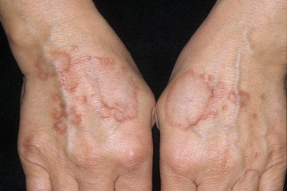 Rash on back of hands - Forum on Opportunistic Infections ...