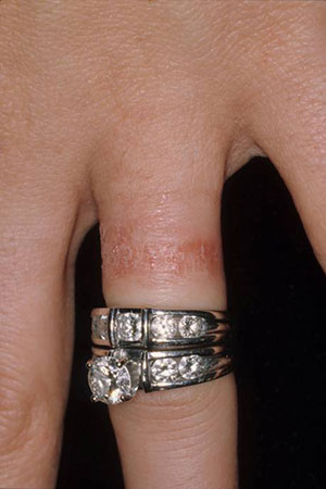 case of the month - Wedding Ring Rash