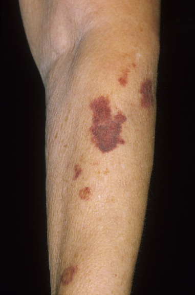 Dark skin patches on arm after venipuncture