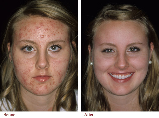 Roaccutane and accutane difference / Metformin 750 mg er