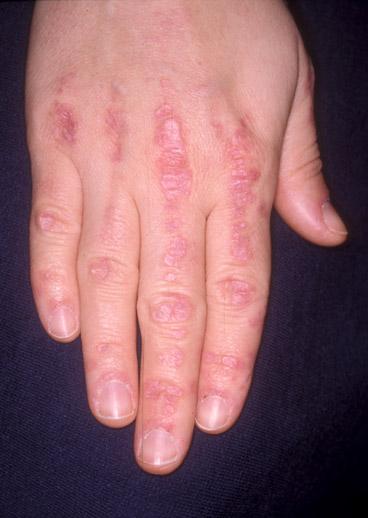 dermatitis on top of hands - photo #27