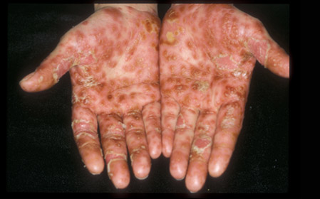 How do you say 'psoriasis' in Punjabi 2
