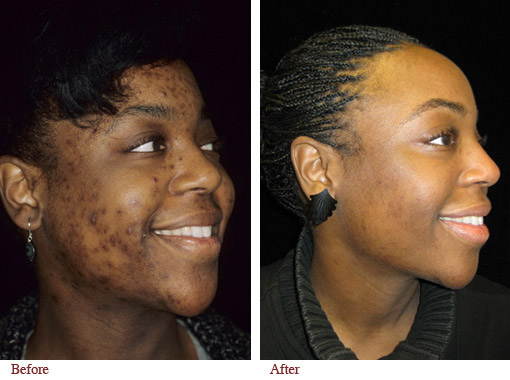 nodulocystic acne : Continuing Medical Education Section