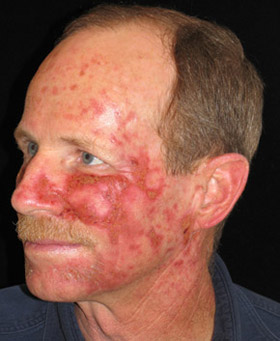 Efudex Rash Actinic Keratoses Red Rash