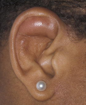 Auricular Cyst