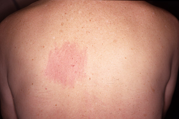 Ringworm Treatment Try These 6 Natural Remedies  Dr Axe