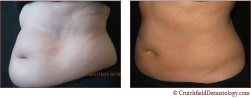 Coolscultping to lose belly fat