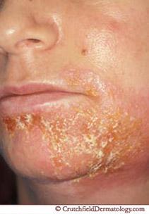 impetigo skin care treatment dermatologist minneapolis mn, Human body