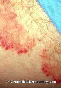 Crotch rot Jock Itch Image