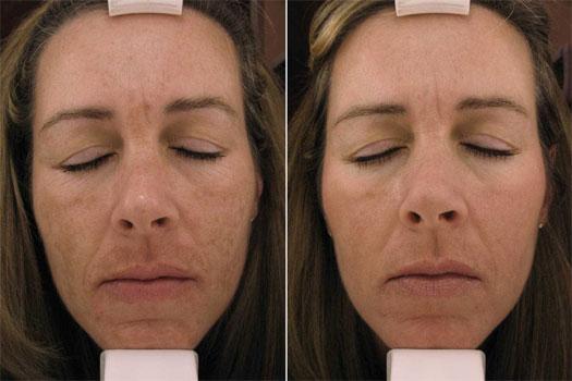 Forehead sensitive - RightDiagnosiscom
