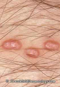 Molluscum contagiousum skin infection crutchfiled dermatology for Molluscum contagiosum swimming pool