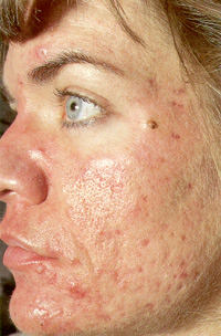 Woman's face acne before treatment