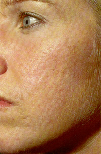 Woman's acne after neostrata treatments