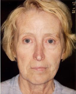 Woman's face before dermal fillers