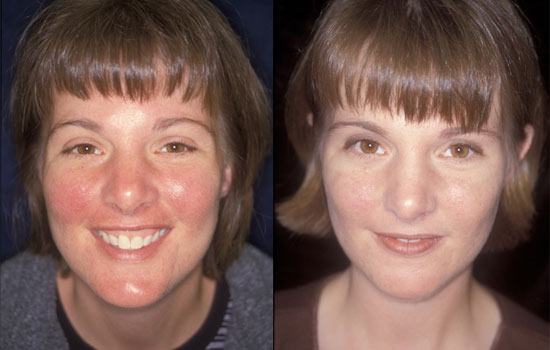 before and after rosacea cream