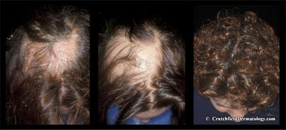 Hair re-greowth after dandruff treatments