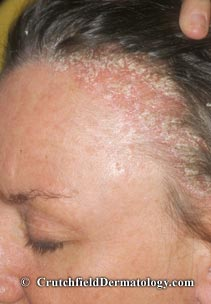 Cure For Dandruff Dry Itchy Scalp Crutchfield Dermatology