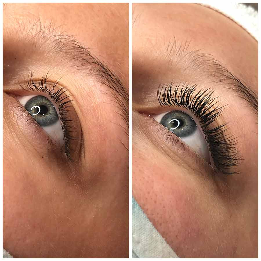 Before and After eyelash extentions at medispa
