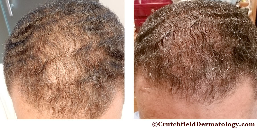Prp Hair Loss Bald Treatment Crutchfield Dermatology Eagan Mn