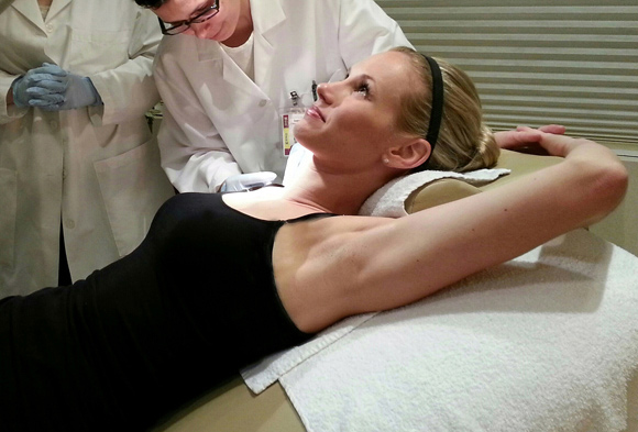 Botox injection under the arm pit