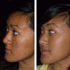 Acne before and after treatment
