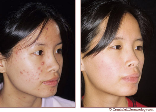 Acne treatment image Minnesota