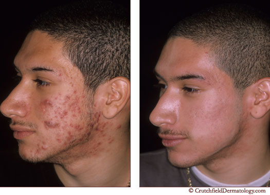 Minnesota Acne Before and After Photo
