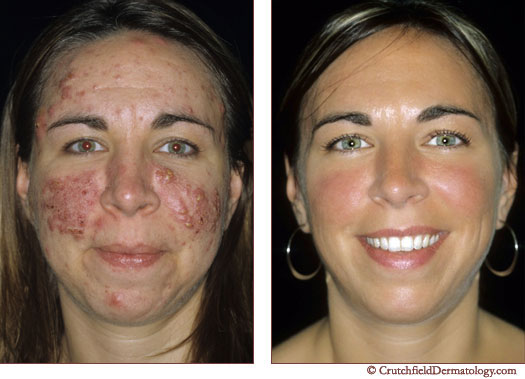 Acne Vulgaris Before And After