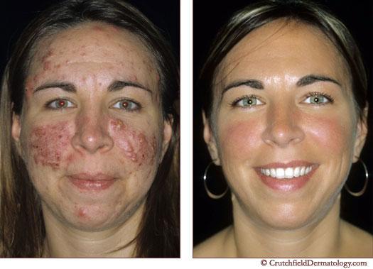 Acne Treatment Get Rid Acne Blackheads Mn
